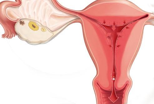 Ovulatory phase (14th day)